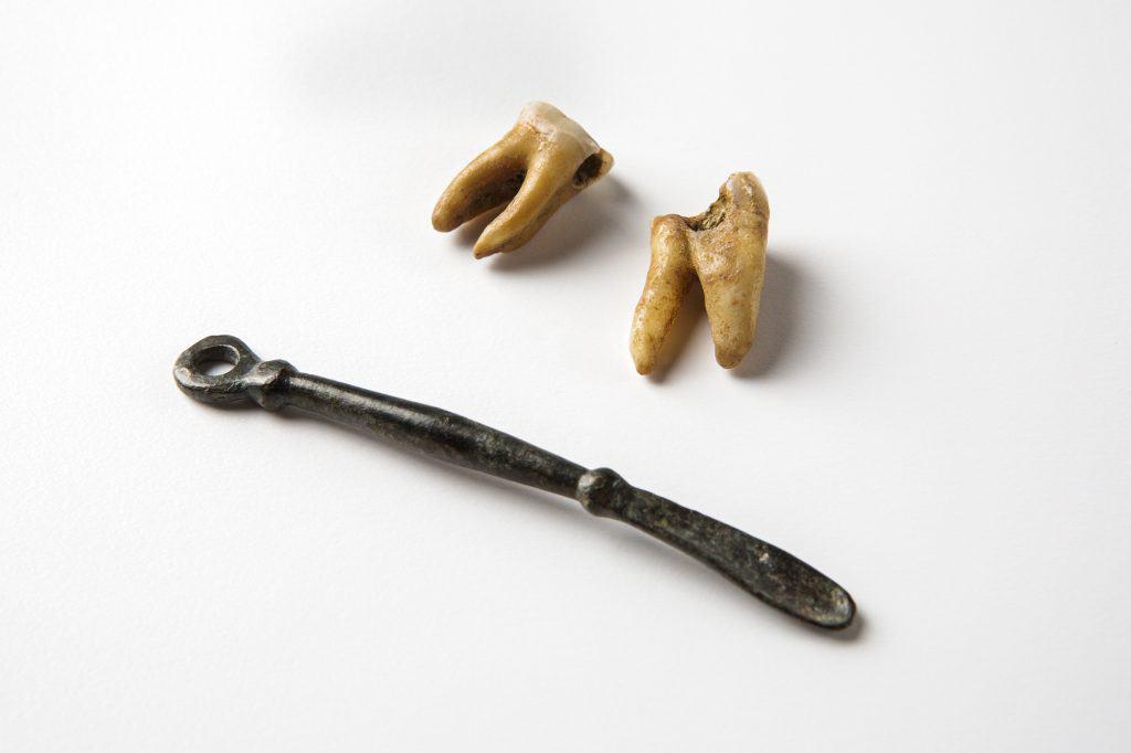 Kariöse Backenzähne und Löffelsonde