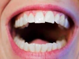 Zähne Zahnarzt Zahnmedizin Mund Weiß Hygiene