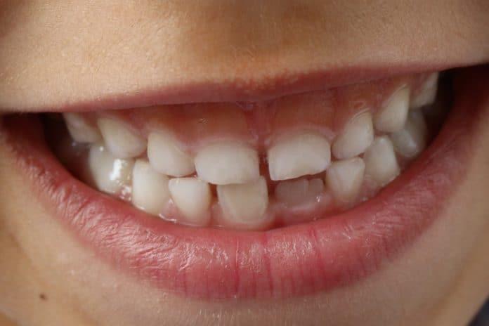 zähne kind lächeln kinder zahnmedizin lächeln zähne