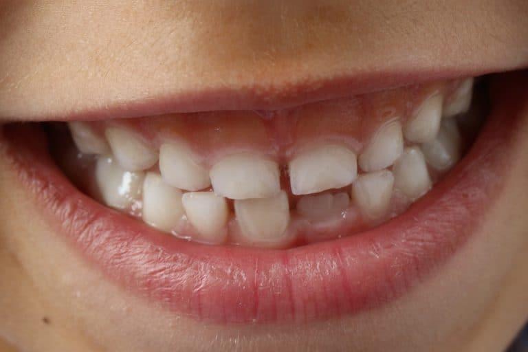 Zahnen: Warum Sie nicht nur Ihre eigenen Zähne, sondern auch den Milchzahn Deines Babys pflegen solltest.