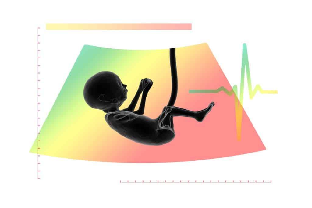 Wie sag ich es meinen Eltern: per Ultraschall: Ultraschall Fötus Embryo Plazenta Logo Nabelschnur
